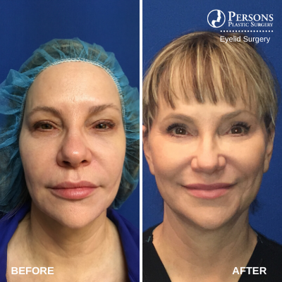 Before and after traditional eyelid surgery