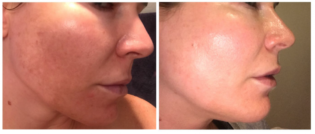 Brightening Pads Before & After
