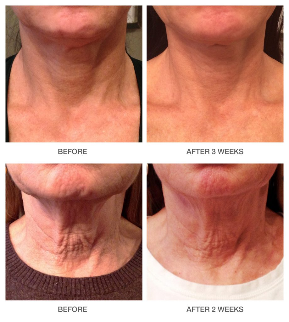 Lift-Tightening-Neck-and-Decolletage-Cream Before & After