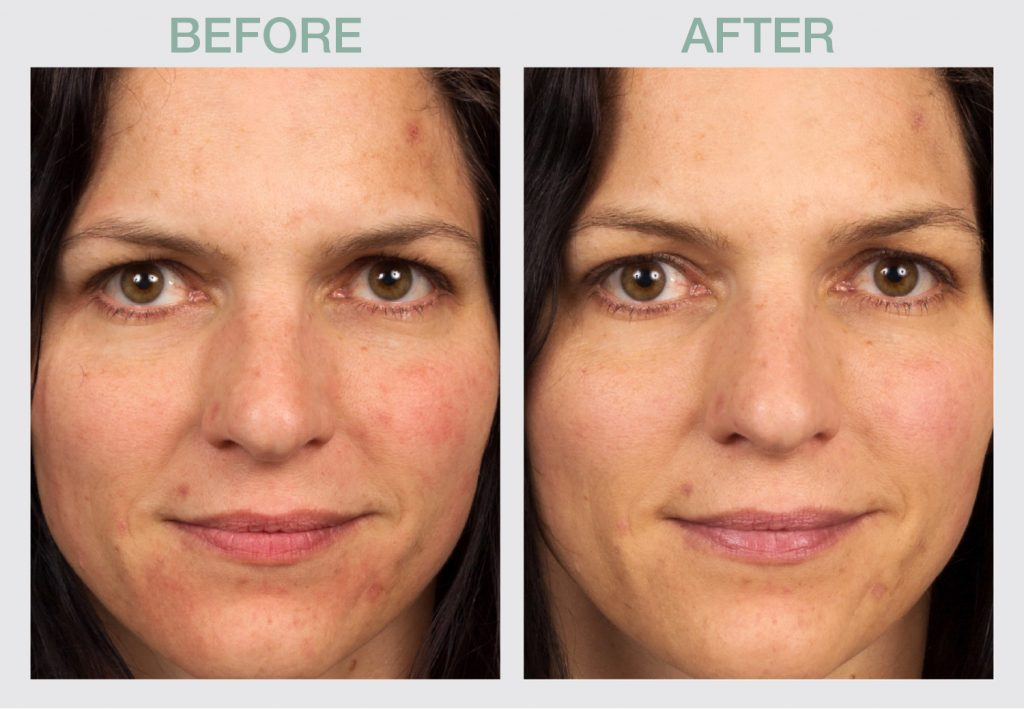 Universal-Perfection-Tinted-SPF-50-Sunscreen-1